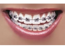 Verma Dental clinic and Implant Centre